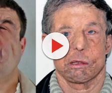 1º homem a fazer dois transplantes de face mostra enfim seu rosto; veja