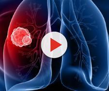 Cancro ai polmoni, creato un dispositivo diagnostico che lo rileva - net1news.org