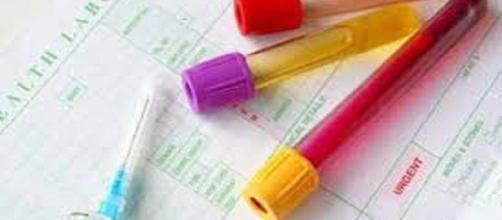 La importancias de los exámenes de sangre