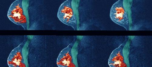 Para algunos pacientes con cáncer de mama, las metástasis tempranas ocurren 12 a 18 meses después de la cirugía