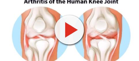 How stem cells can help with arthritis and other illnesses - Image credit Jose Barreto | YouTube