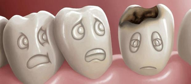 Caries Dental - alzamoradental.com