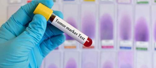 Ce lo dirà una semplice analisi del sangue   Pazienti.it - pazienti.it