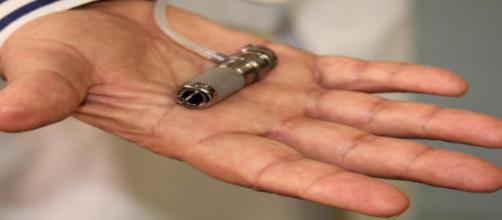 Minicuore impiantato sulla giovane paziente.