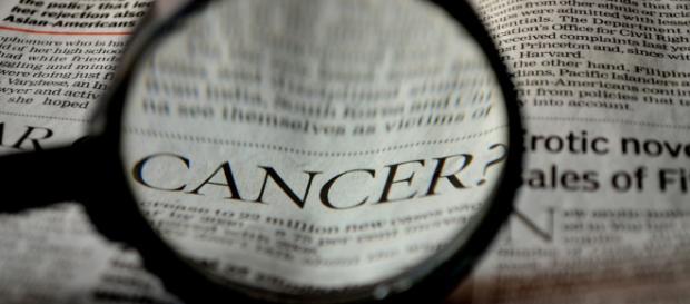 Cancerul de prostată este ucigasul tăcut al bărbaţilor. În anul 2012, la nivel mondial , au fost inregistrate 307,000 de decese