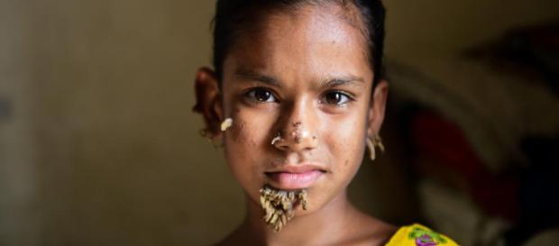 """Una niña de Bangladesh sufre del terrible síntoma del """"hombre ... - i24web.com"""