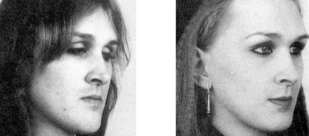 Cirugía estética feminizante en transexuales - Dr. Sarmentero - doctorsarmentero.com