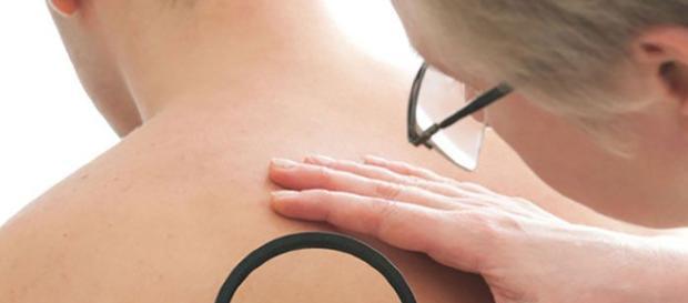 Mejores 259 imágenes de Eczema Living en Pinterest | Consejos pinterest.es