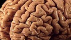 Los pliegues de tu cerebro podrían decirte sobre el riesgo de esquizofrenia