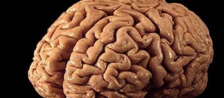 El método, que se basó en imágenes de resonancia magnética del cerebro, examinó la correlación entre la cantidad de plegamientos