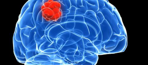 La obesidad aumenta el riesgo de tumores cerebrales - muyinteresante.es