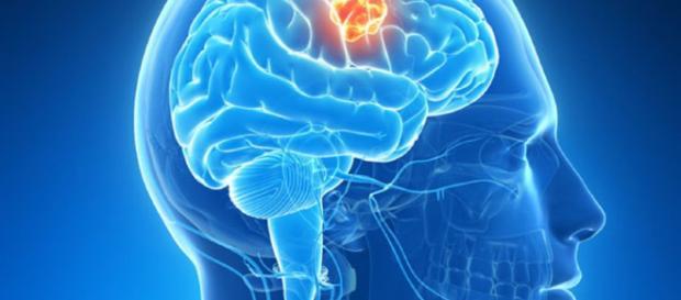 Mecanismo clave en formación de tumores cerebrales   Cánce - com.uy