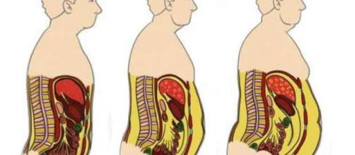 Algunos genes serían responsables de la grasa en la cintura, la diabetes y la hipercolesterolemia.