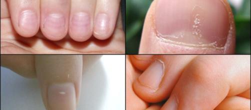 El deterioro de las uñas puede mejorar, a través de alimentos ricos en zinc.