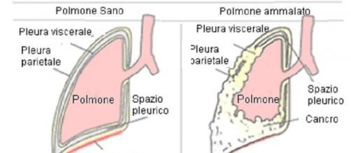 El inhibidor nivolumab PD-1 también funciona en el mesotelioma pleural