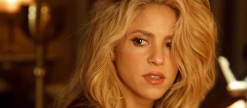 El método de Shakira para esconder su alopecia