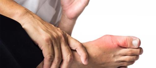 Gota: causas, síntomas y tratamientos - conocersalud.com