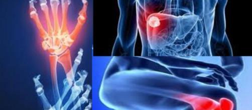 La artritis reumatoide (AR) es una enfermedad crónica inflamatoria y puede atacar a varios órganos y tejidos del cuerpo