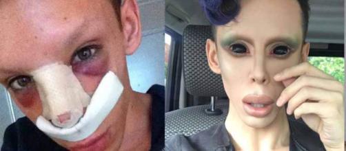 Joven se realizó 110 cirugías para lucir como un extraterrestre .ecuavisa.com