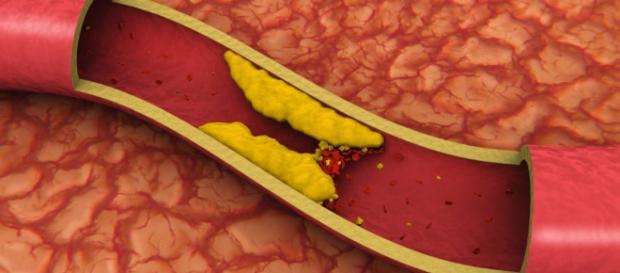 Un alimento se consumato tutti i giorni previene ictus e infarto