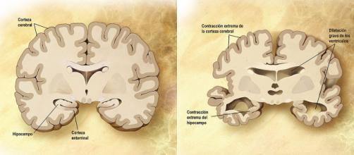 Enfermedad de Alzheimer - Wikipedia, la enciclopedia libre - wikipedia.org