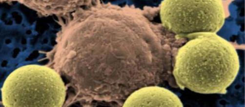 Mortalidad: Un nuevo tratamiento contra el cáncer logra evitar la elconfidencial.com