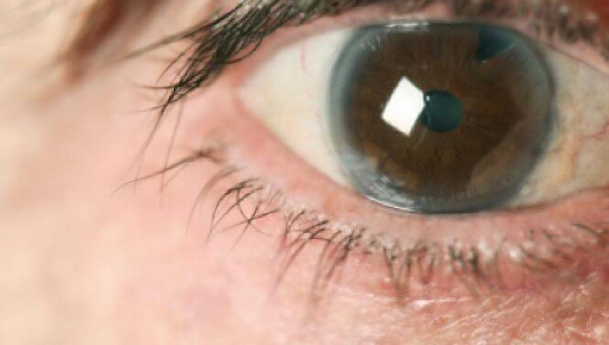 efectos secundarios de las gotas para glaucoma