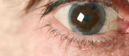 Cómo prevenir el glaucoma de manera natural - Mejor con Salud - mejorconsalud.com