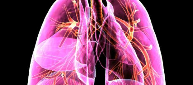 Imfinzi® podrá usarse en cáncer pulmonar no resecable. – Ideas Pharma - ideaspharma.com
