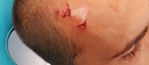 Jogador Bas Dost foi agredido com barras de ferro. (foto reprodução).