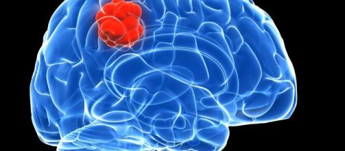 Los tumores cerebrales están afectando a más personas