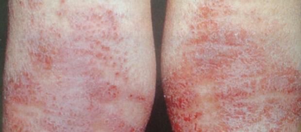 Confira como tratar de forma eficaz a dermatite e a psoríase