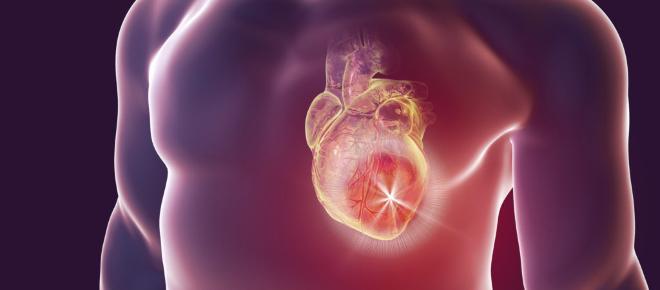Su grupo sanguíneo afecta, riesgo de ataque cardíaco o acidente cerebrovascular