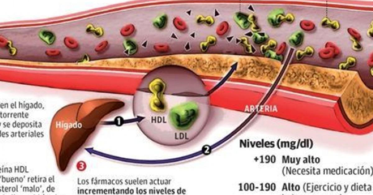 Dieta para bajar el colesterol malo ldl