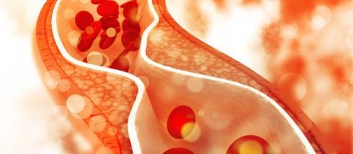 La actividad física y el estilo de vida adecuado pueden reducir el nivel de colesterol malo. Vives más y vives mejor: consejos de expertos