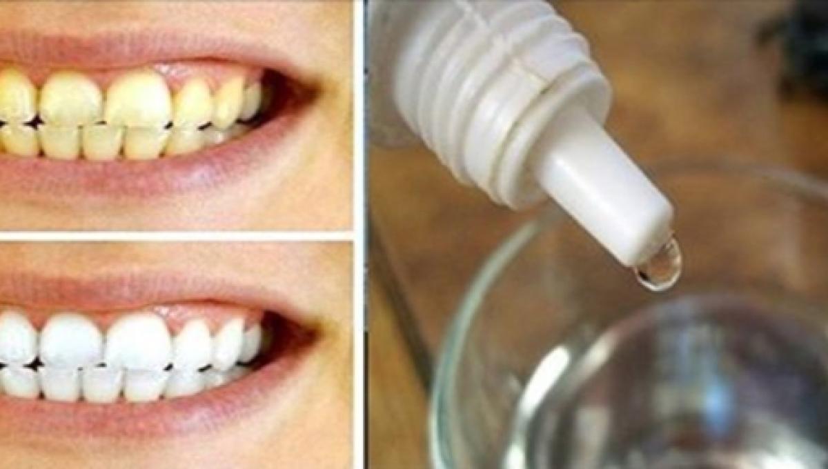 Conheca O Produto Que Clareia Os Dentes Evita Fungos E Resolve