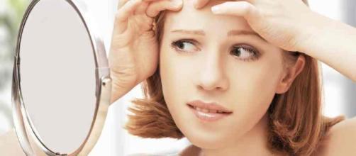 Qué alimentos producen acné, evitalos