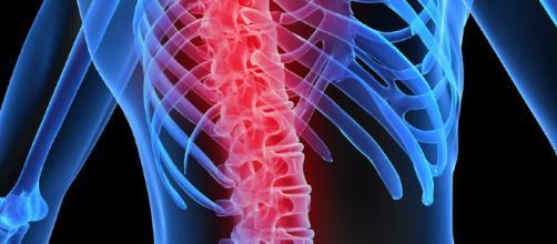 Osteoporosis en hombres prevención y tratamiento | Neolife - neolifeclinic.com