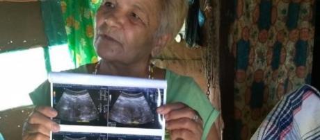 Mujer de 70 años podría estar embarazada