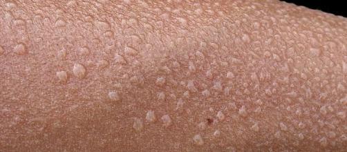 Remedio casero para la sudoración de manos y pies | Salud - facilisimo.com