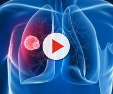 Tumore al polmone, allarme tra le donne: sono più colpite degli uomini