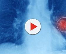 Rivoluzione nella cura del tumore al polmone