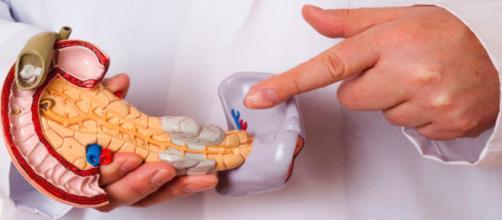 Cáncer de Páncreas | Dr Isidoro Wiener Carrillo Gastrocirujano - gastroenterologos.net