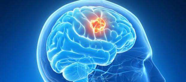 Mecanismo clave en formación de tumores cerebrales | Cáncer ... - com.uy