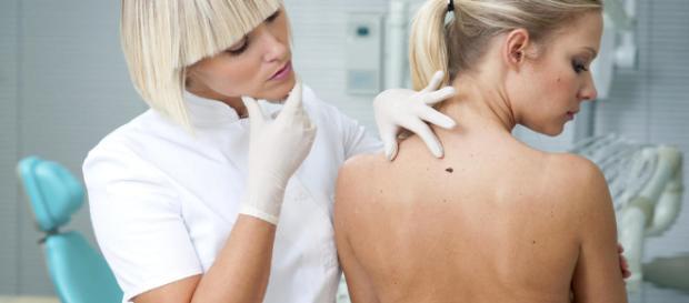 Señales que pueden indicar que tienes cáncer de piel: una ... - elconfidencial.com