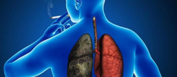 """El cáncer de pulmón sigue su desconocido y """"desalentador"""" avance ... - com.mx"""