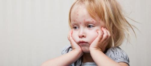 Sarampión en niños: causas, síntomas y tratamiento