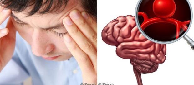 Síntomas de un Aneurisma cerebral y factores de riesgo a tomar en cuenta