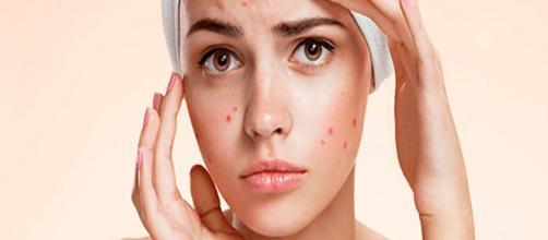 ¿Podría un agotamiento de nutrientes ser la causa de su acné?