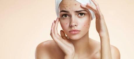 Los mejores consejos para combatir el acné